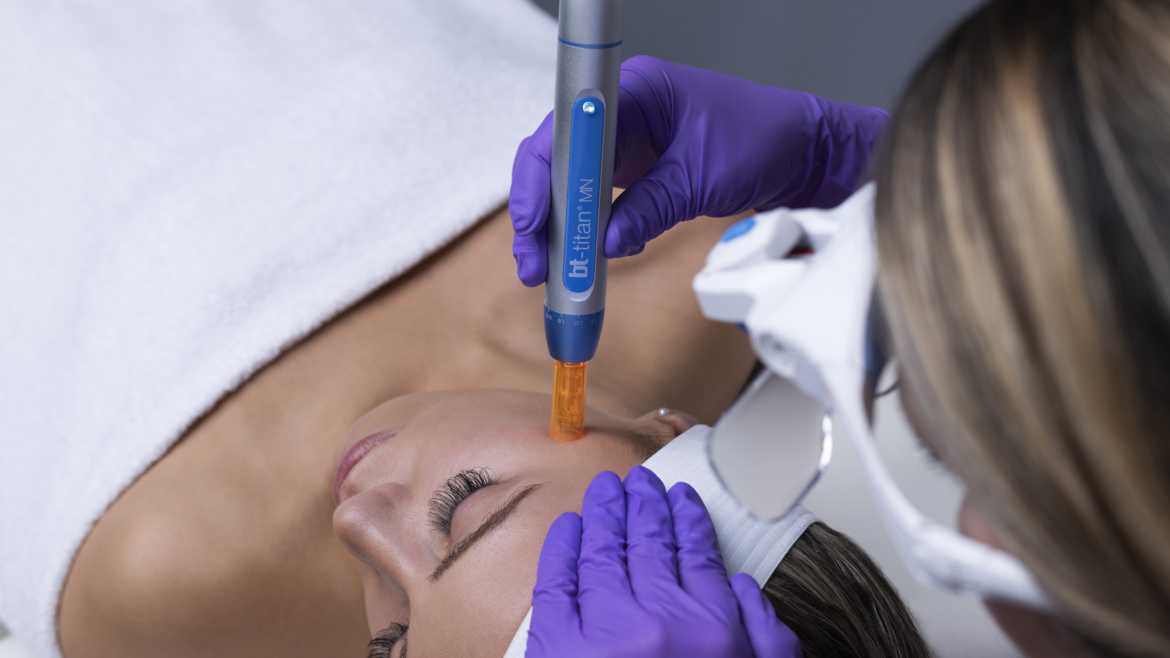 Skin Microneedling with bt-titan®MN